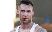 """Adam Levine """"bầm giập"""" trên trường quay MV mới"""