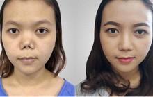 """Bác sỹ Huy Kangnam: """"Người giúp tôi thoát khỏi nỗi ám ảnh mũi hỏng"""""""