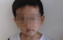 Cái chết thương tâm của bé trai 6 tuổi dưới bàn tay bạo hành của mẹ ruột và bố dượng gây phẫn nộ dư luận