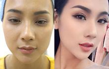 Hotgirl Việt và quyết định nâng mũi, cắt mí đổi đời