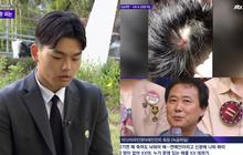 Biến mới vụ boygroup Kpop bị bạo hành chấn động Hàn Quốc: Tiết lộ ảnh vết thương rỉ máu, đoạn ghi âm đe dọa của CEO