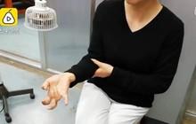 Người phụ nữ Trung Quốc suýt liệt tay vì cầm khư khư smartphone cả tuần liền