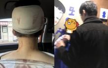 Hàn Quốc: 2 cô gái trẻ bị 4 người đàn ông tấn công chỉ vì vẻ ngoài thiếu nữ tính và để tóc ngắn, người dân bức xúc yêu cầu Nhà Xanh vào cuộc