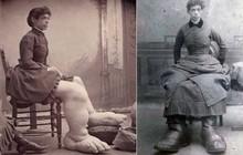 Bí mật cuộc sống của người phụ nữ chân to nhất thế giới, kiếm bộn tiền vì chân khổng lồ nhưng chết cũng vì chân