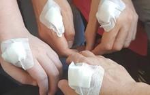 Cận cảnh đôi bàn tay cấy chip của người Thụy Điển, thay thế cho hàng tá loại thẻ rắc rối