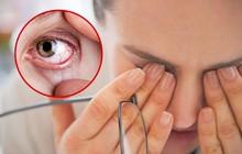 Đừng xem thường tình trạng khô mắt vì biến chứng rất nghiêm trọng và đây là cách để nhận biết