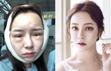 """Sang Hàn 3 ngày PTTM, """"Angela Baby phiên bản chuyển giới"""" mắc kẹt tại hải quan vì gương mặt sưng phù"""