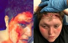 Phớt lờ cảnh báo, cô gái vẫn mang bộ tóc giả quá chật để rồi lãnh vết thương đầm đìa máu, dài tới 15cm trên mặt