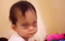 Hà Nội: Bé gái bị sưng tím mắt và trán sau khi được đón từ trường mầm non về nhà