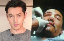 Lần đầu tiên sau 12 năm, Hồ Ca tiết lộ ký ức về vụ tai nạn xe hơi kinh hoàng khiến anh suýt mất 1 nửa khuôn mặt