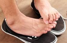 Đôi chân bốc mùi trong mùa hè là do những yếu tố nào?