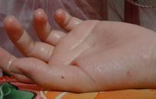 Nỗi khổ chỉ những người bị ra mồ hôi tay chân mới hiểu: Trời càng nóng, càng ướt nhẹp!