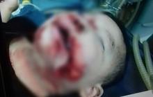 Hà Nội: Bé trai 21 tháng tuổi bị chó dại cắn rách mặt, hoàn cảnh gia đình khó khăn