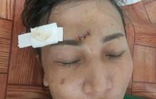 Hà Nội: Nữ chủ quán trà đá bị ném ghế, đánh nhập viện trong lúc dọn hàng tránh mưa