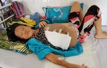 Lấy khối u khổng lồ nặng 6,3kg ra khỏi ngực một người phụ nữ ở Đà Nẵng