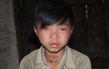 """Vùng đất trẻ em có hai """"của quý"""" ở Hà Giang: Bệnh viện Nhi Trung ương vào cuộc truy nguyên nhân những đứa trẻ bị """"giời hành"""""""