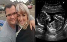 Mang thai đến tuần thứ 30 mà bụng vẫn không phát triển to thêm cũng không thấy con đạp trong bụng, bà mẹ đi siêu âm mới nhận ra điều tệ hại
