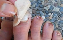 Những lỗi đi giày trong mùa hè ai cũng từng mắc phải gây hại nghiêm trọng đến sức khỏe