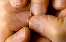 7 dấu hiệu cảnh báo bệnh nguy hiểm biểu hiện trên bàn tay của bạn