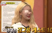 """""""Nữ Idol bị chê xấu nhất Kpop"""" tham gia """"Running Man"""" với một bên mắt bị băng kín"""