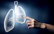 4 nguyên nhân dẫn đến bệnh ung thư phổi mà nhiều người thường chủ quan bỏ qua