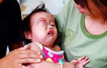 Em bé 2 tuổi ở Cà Mau bị u mắt nguy hiểm, bố mẹ nghèo cố tìm cách cứu con trong tuyệt vọng