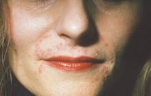 Cứ tưởng là bị mụn thông thường nhưng đây lại là những căn bệnh nghiêm trọng về da