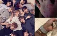 Fan Wanna One xô xát đến đổ máu trong concert tại Kuala Lumpur: Đi xem ca nhạc hay đi đánh trận?