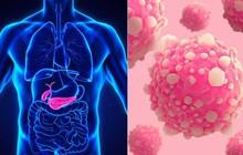 5 bộ phận trên cơ thể cực dễ mắc bệnh ung thư mà bạn không nên chủ quan bỏ qua