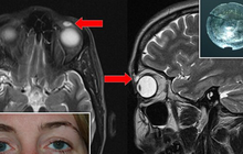Y học cũng sửng sốt: Kính áp tròng kẹt trong mí mắt, sau 28 năm mới biết mà lấy ra