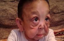 Mắc phải chứng bệnh hiếm gặp với tỉ lệ 1/50.000, cậu bé mới 6 tuổi đã có ngoại hình như một cụ ông