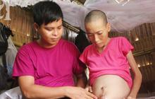 Người đàn ông trẻ chấp nhận điều tiếng, một tay chăm sóc vợ bệnh tật của người khác suốt 2 năm trời