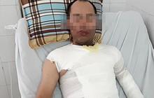 Vụ người đàn ông bị tạt axit ở Hà Đông: Con gái hoảng loạn vì chứng kiến bố bị tấn công