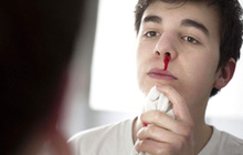 Thường xuyên chảy máu cam có thể là do một số vấn đề sức khỏe sau đây gây ra