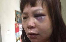 """Chồng """"dụ"""" vợ lên đồi đánh đập dã man ở Quảng Ninh: Bắt tạm giam người chồng để điều tra"""