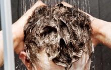 Sai lầm thường gặp khi gội đầu khiến tóc bạn nhanh bết dính và phát sinh đầy gàu