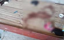 Phú Thọ: Thương tâm bé gái 10 tuổi bất ngờ bị vật sắc nhọn cứa đứt cổ, tử vong trên đường đi cấp cứu