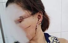 """Thông tin mới nhất vụ chồng dùng dao rạch mặt, cắt gân chân """"vợ hờ"""" ở Bắc Giang"""