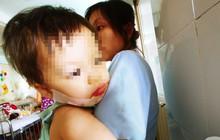 TP.HCM: Mẹ đơn thân tố bảo mẫu làm con gái 18 tháng tuổi bị bỏng nặng ở mặt