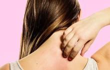 Da bị ngứa, mẩn đỏ cảnh báo vấn đề gì về sức khỏe?