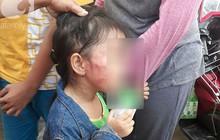 Bố của bé gái 5 tuổi bị bảo mẫu tát liên tiếp vào mặt, dọa lấy kéo cắt lưỡi: Cô ấy cũng đáng thương