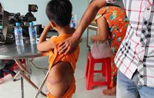 Vụ trẻ khuyết tật bị đánh: Bé muốn cô chủ nhiệm dạy thì mới đi học lại