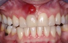 5 dấu hiệu bất thường ở vùng răng miệng có thể dự báo nhiều căn bệnh nguy hiểm mà bạn không lường trước được