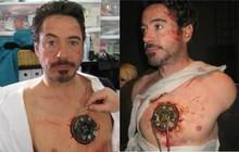 """Bài đăng kêu gọi giúp sao """"Iron Man"""" phẫu thuật tim nhận về tận 70 nghìn lượt chia sẻ, nhưng sự thật phía sau là gì?"""