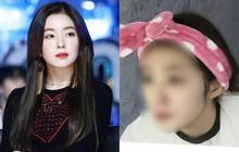 Irene (Red Velvet) bình thường rất xinh nhưng nhìn mặt mộc của cô nàng bạn sẽ sốc