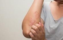 Nhận biết nguy cơ mắc bệnh tiểu đường thông qua một vài biểu hiện khác thường trên làn da