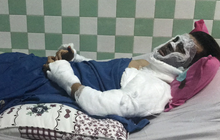 Công an thu giữ được 1 clip quan trọng vụ Việt kiều bị tạt axít, cắt gân chân khi chở bạn gái đi chơi Tết