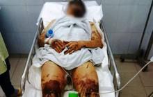 Vụ nam Việt kiều bị tạt axit, cắt gân chân khi về quê ăn Tết: Anh trai nạn nhân vội vã rời khỏi Việt Nam không rõ lý do
