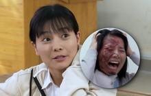 """Pha đánh ghen kinh hoàng ở """"Hoa Cúc Vàng Trong Bão"""": Nữ chính xinh đẹp bị tạt axit cháy nát mặt"""