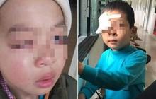 Điều tra vụ học sinh tiểu học bị chấn thương mắt nghi do cô giáo đánh